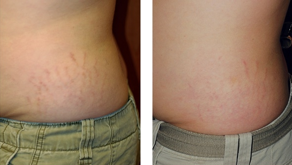Before Fraxel re:store and 1 month after 3 treatments by J. Waib